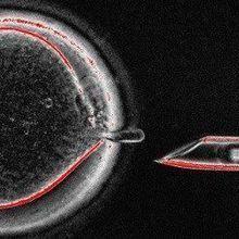 Three-Parent IVF Advances