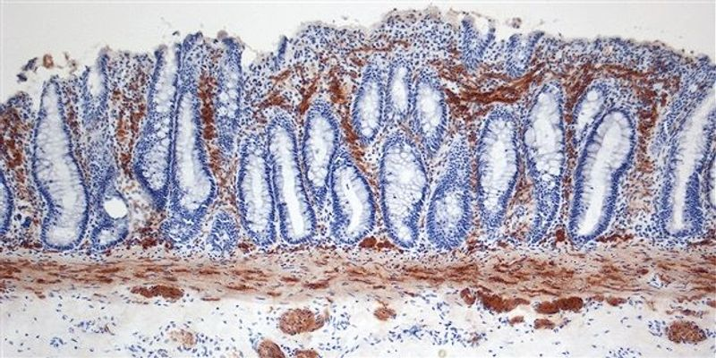 Scientists Grow Intestinal Tissues With Functional Nerves In The Lab