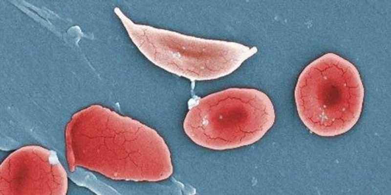 More Success Fixing Sickle Cell Gene with CRISPR