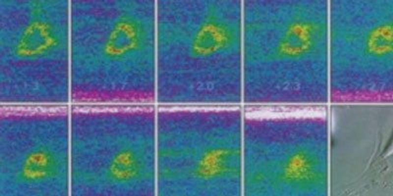 Two-Photon Microscopy's Historic Influence on Neuroscience