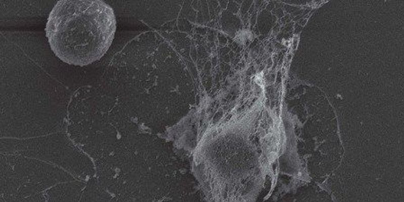 Nixing NETs to Prevent Metastasis