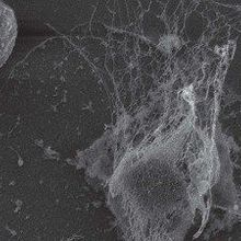 Nixing NETs to Prevent Metastasis