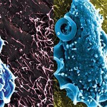 Image of the Day: Protective Protist