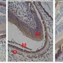 How a Sleep-Associated Hormone Affects Murine Tooth Development
