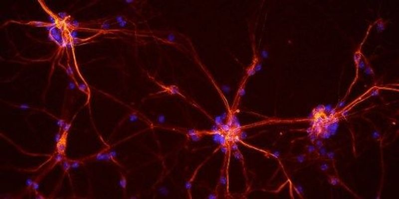 With CRISPR, Scientists Make Neurons From Fibroblasts