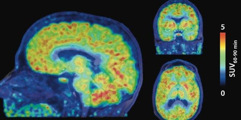 Gene Expression Imaged in the Living Human Brain