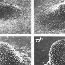 First Micrographs of Myxobacteria Forming Fruiting Bodies