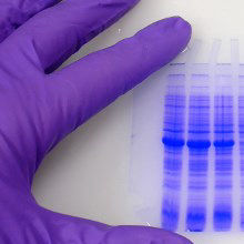 LabQuiz: What's Your Western Blot Personality?