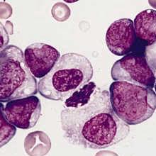 $1.5 Billion Pharma Buyout for Leukemia Drug