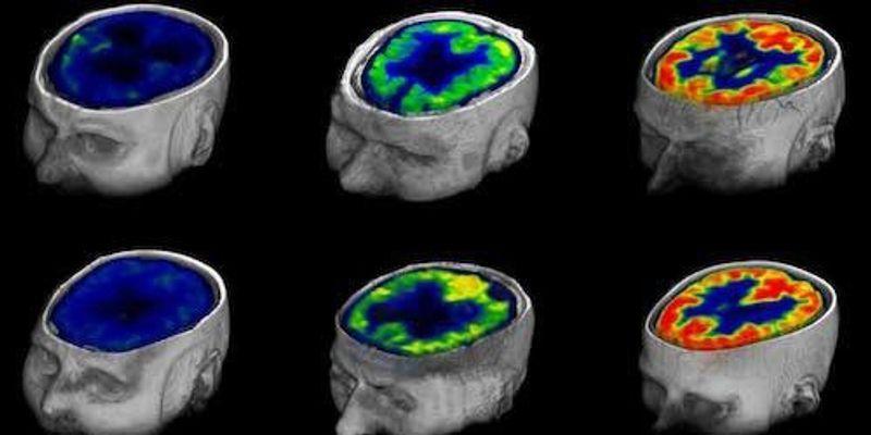 Quantifying Consciousness