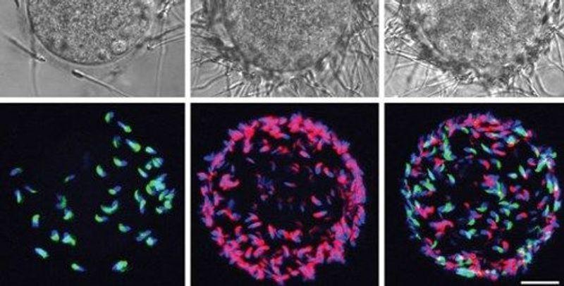 Next Generation: Sperm-Catching Beads