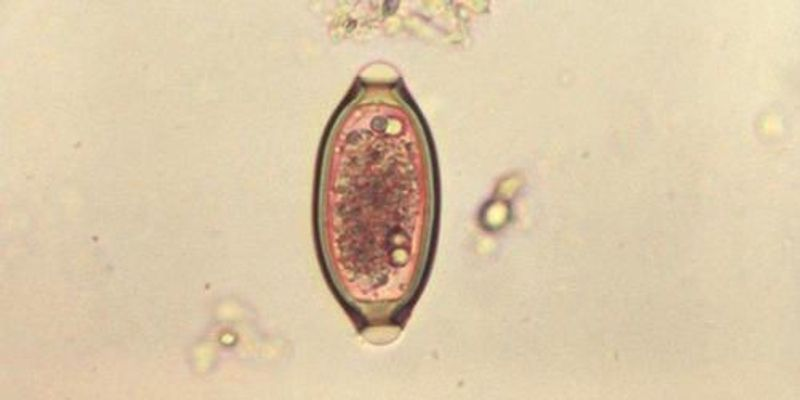 Worm Infection Can Improve Gut Health: Study
