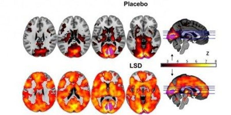 Psychedelic Neuroimaging