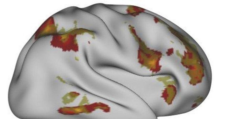 Toward Predicting Personalized Neural Responses