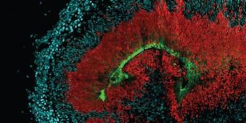 How Zika Infiltrates Developing Brains