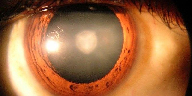 Surgery, Stem Cells Treat Cataracts