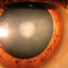 Surgery, Stem Cells Treat Cataracts