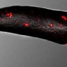 Amoebae Have Human-Like Immunity