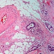 Mutations Not Tied to Metastasis