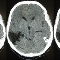 Opinion: Why Most TBI Studies Fail