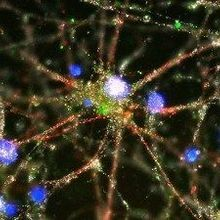 Schizophrenia and the Synapse