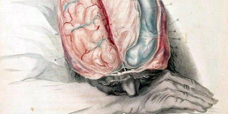 More Evidence of Alzheimer's Transmission