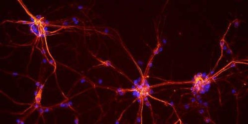 Cocaine Induces Neuronal Autophagy