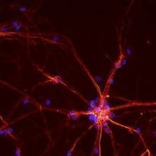Cocaine Induces Neuronal Autophagy