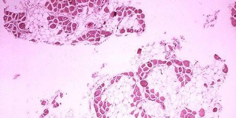 CRISPR Improves Disease in Adult Mice
