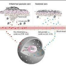 Next Generation: Designer Cells Treat Psoriasis