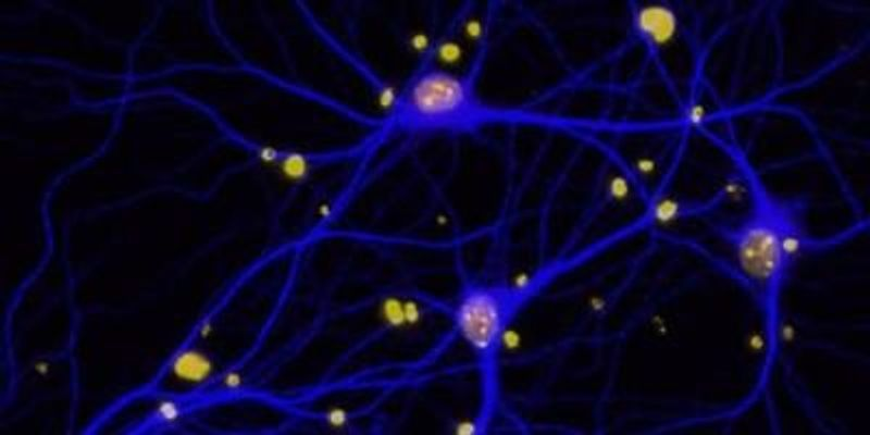 BRCA1 Linked to Alzheimer's