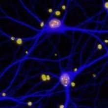 BRCA1 Linked to Alzheimer's