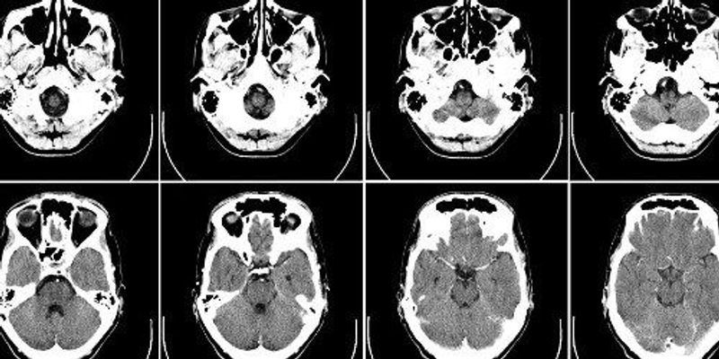 Opinion: Brain Scans in the Courtroom