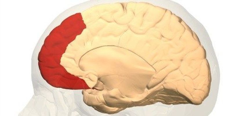 Brain Fold Tied to Hallucinations