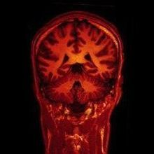 Breaching the Blood-Brain Barrier