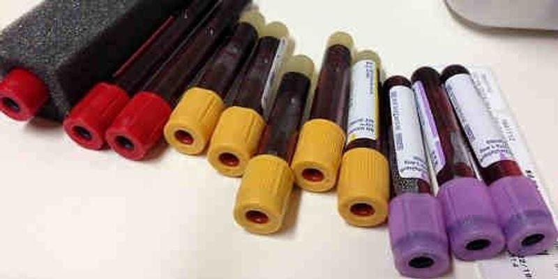 New Hope for Alzheimer's Blood Test