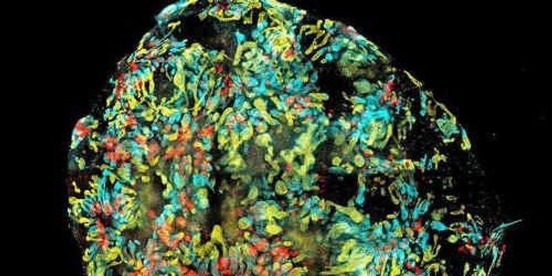 Mini-Kidneys from Stem Cells