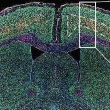 Endogenous Retrovirus Active in ALS