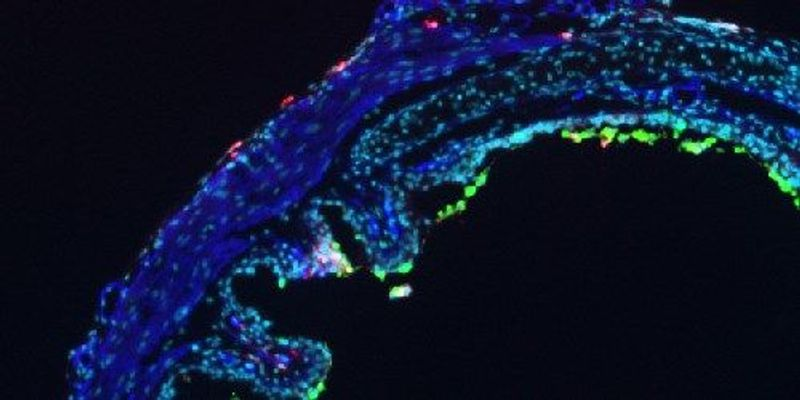 Neutrophils Lead, T Cells Follow