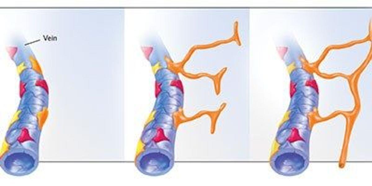 Rethinking Lymphatic Development The Scientist Magazine