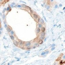 Prostate Organoid from Stem Cells