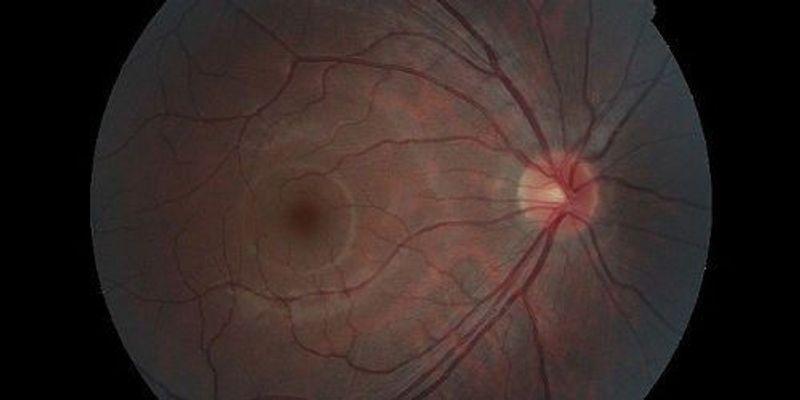 Bionic Eye Success