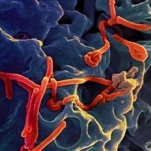 Ebola Virus Virulence