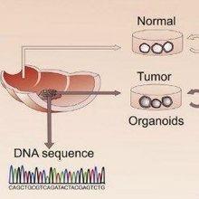 Organoid Biobank