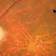Eye Stem Cell Therapy Moves Ahead
