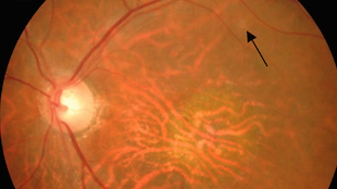 Eye Stem Cell Therapy Moves Ahead The Scientist Magazine 174
