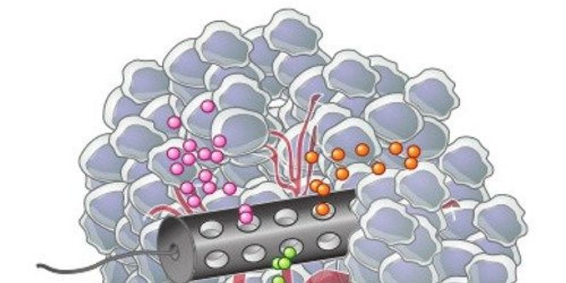 Personalized Devices Predict Cancer Drug Response