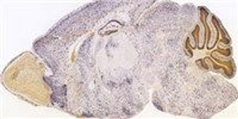 Neuroscience of Marijuana Munchies