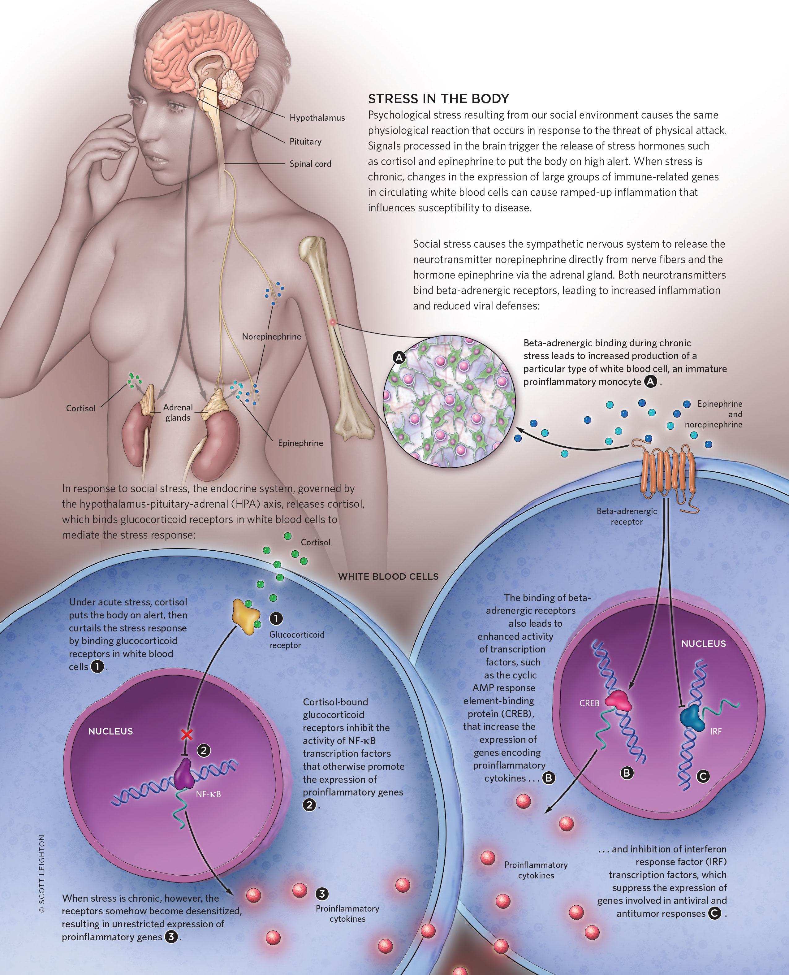 Stress Fractures | The Scientist Magazine®