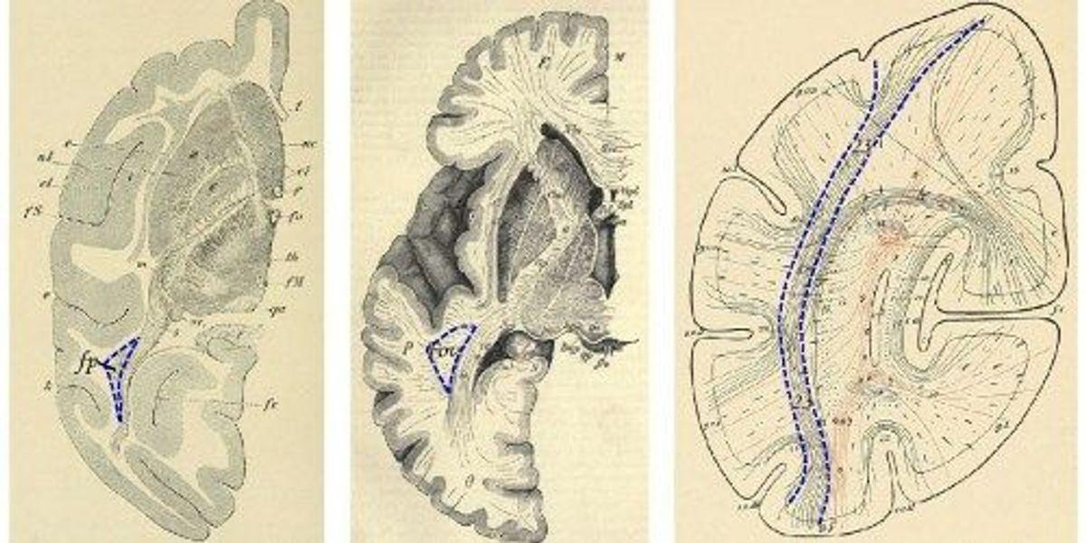 Brain Structure Rediscovered The Scientist Magazine